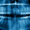 Панорамный снимок зубов бесплатно по ОМС