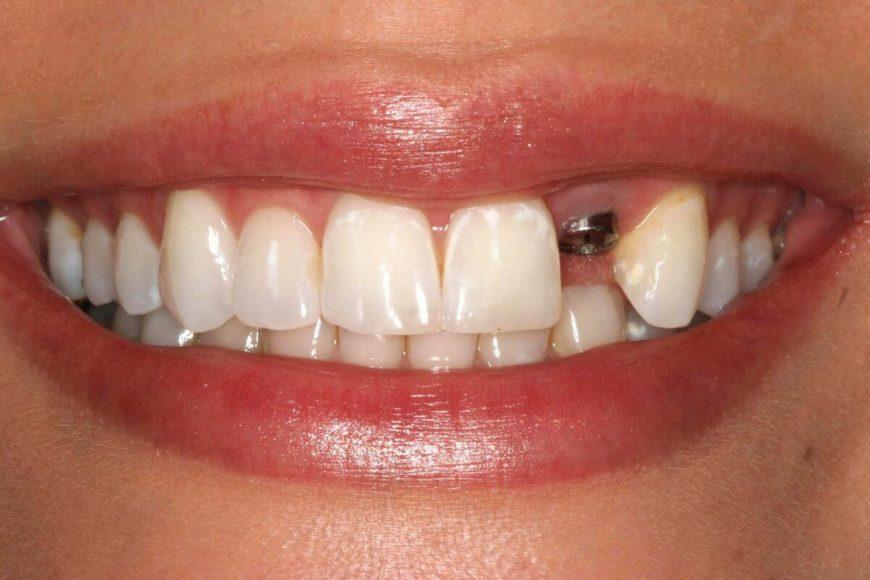 Втсавить зубы бесплатно по ОМС